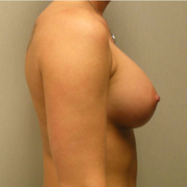 Breast Augmentation after 3680736