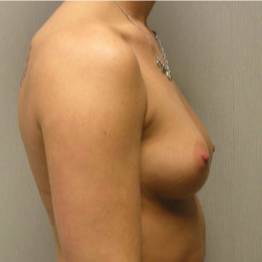 Breast Augmentation before 3680736