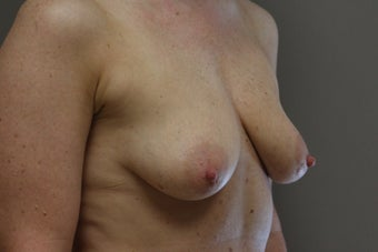 "42 year old female, 5'9"", 158 lbs., desires cosmetic improvement of breasts before 1253864"