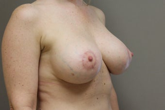 "42 year old female, 5'9"", 158 lbs., desires cosmetic improvement of breasts after 1253864"