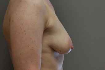 "42 year old female, 5'9"", 158 lbs., desires cosmetic improvement of breasts 1253864"