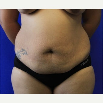 25-34 year old woman treated with Tummy Tuck before 1673950