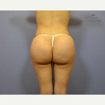 25-34 year old woman treated with Butt Augmentation after 3421206