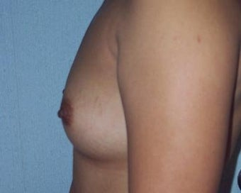 Breast Augmentation before 281387