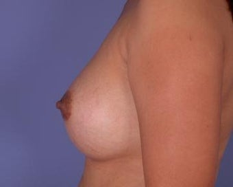 Breast Augmentation after 281387