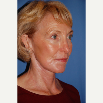 55-64 year old man treated with Facelift after 3610809