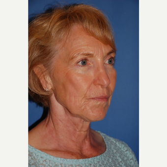 55-64 year old man treated with Facelift before 3610809