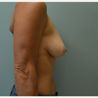 45-54 year old woman treated with Breast Lift before 3071876