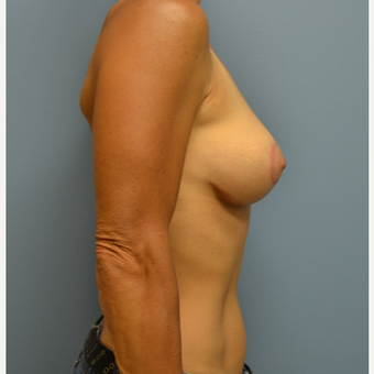 45-54 year old woman treated with Breast Lift after 3071876