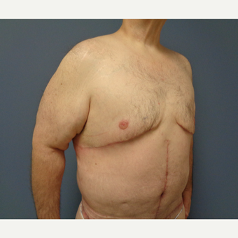 45-54 year old man treated with Male Breast Reduction after 3628574