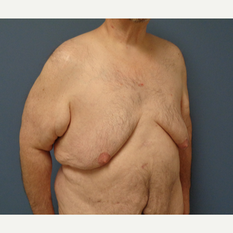 45-54 year old man treated with Male Breast Reduction before 3628574