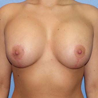 25-34 year old woman treated with Breast Augmentation after 3320639