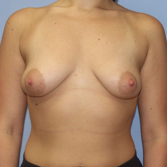 25-34 year old woman treated with Breast Augmentation before 3320639