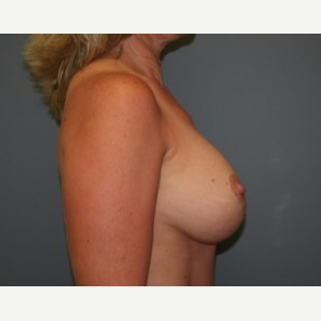 25-34 year old woman treated with Breast Lift after 3339752