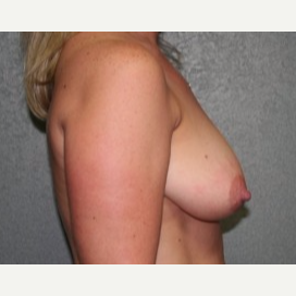 25-34 year old woman treated with Breast Lift before 3339752