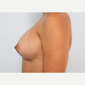 Breast Augmentation after 3340178