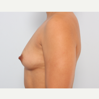 Breast Augmentation before 3340178