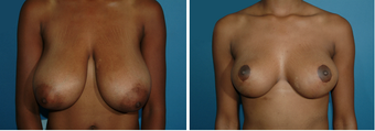 Breast Reduction after 874526