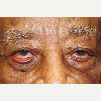 94 year old man treated with Eyelid Surgery before 3151796