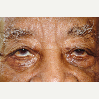 94 year old man treated with Eyelid Surgery after 3151796