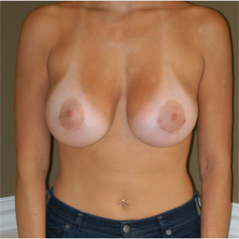 25-34 year old woman treated with Breast Augmentation after 3625193