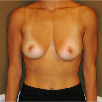 25-34 year old woman treated with Breast Augmentation before 3625193