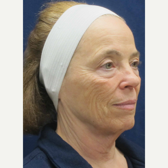 65-74 year old woman treated with Lower Face Lift before 3305951