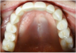 55-64 year old woman treated with Dental Implants after 2715305