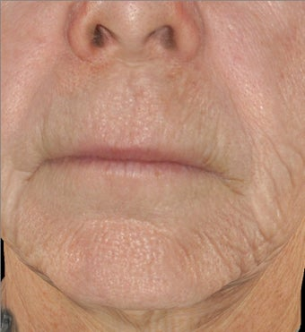 Infini - Microneedle Fractional Radiofrequency for Wrinkles 1275803