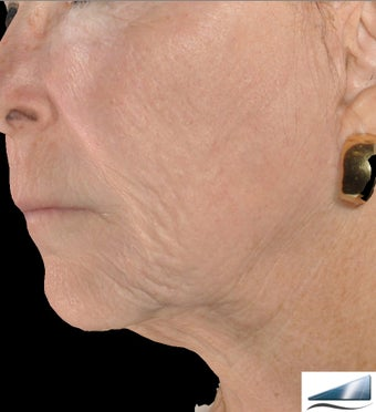 Infini - Microneedle Fractional Radiofrequency for Wrinkles after 1275803