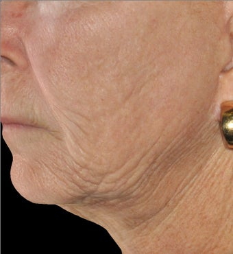 Infini - Microneedle Fractional Radiofrequency for Wrinkles before 1275803