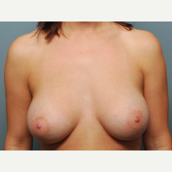 25 y/o Dual Plane Breast Augmentation after 3065862
