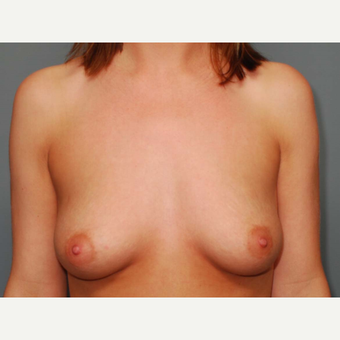25 y/o Dual Plane Breast Augmentation before 3065862