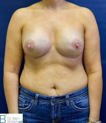 35-44 year old woman treated with Breast Reconstruction after 2687683