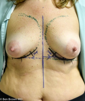 35-44 year old woman treated with Breast Reconstruction 2687683