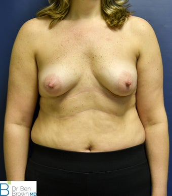 35-44 year old woman treated with Breast Reconstruction before 2687683