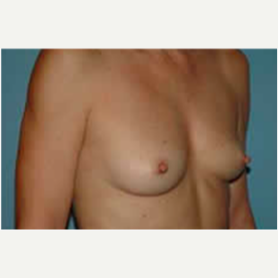 Breast Augmentation before 3058285