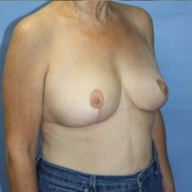 Breast Lift after 2129858
