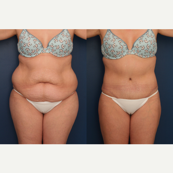 25-34 year old woman treated with Tummy Tuck before 3699381