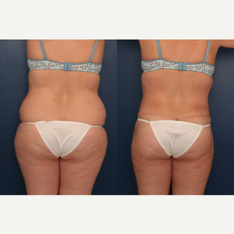 25-34 year old woman treated with Tummy Tuck after 3699381