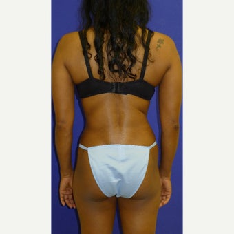45-54 year old woman treated with Vaser Liposuction after 2087541