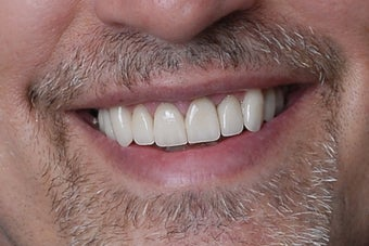 eMax Crowns and Veneers after 751637
