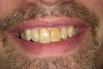 eMax Crowns and Veneers before 751637