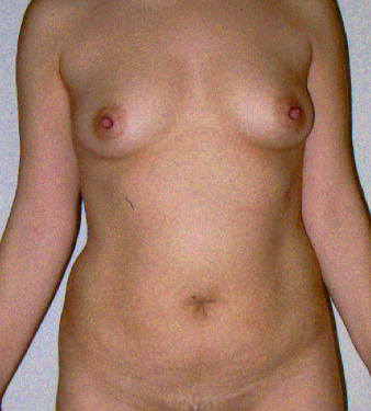 Tummy tuck and Breast Augmentation before 1279775