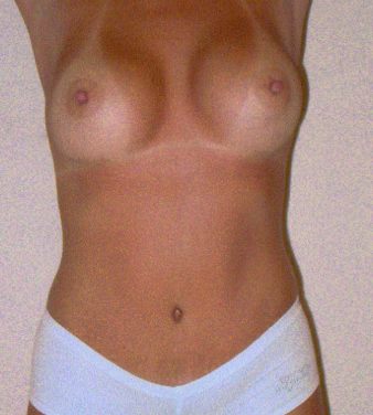Tummy tuck and Breast Augmentation after 1279775