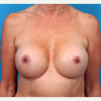 35-44 year old woman treated with Breast Implant Revision after 3371234