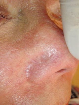 Before and After Veingogh Thermolysis for Spider Veins of the Face