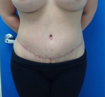 35-44 year old woman treated with Tummy Tuck after 3326040