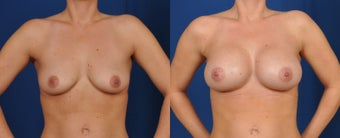 25-34 year old woman treated with Breast Augmentation before 3226302