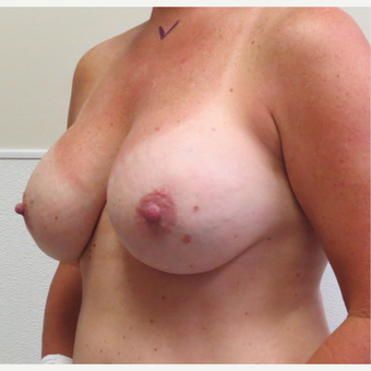 45-54 year old woman treated with Breast Lift with Implants before 3003234